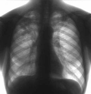 wpid-382310_tuberkulez2.jpg